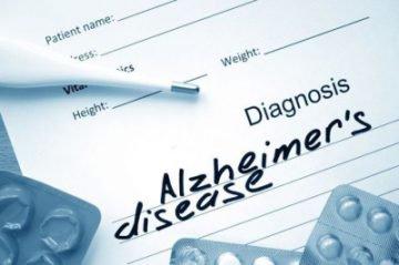 Стадии болезни Альцгеймера, их симптомы и описание