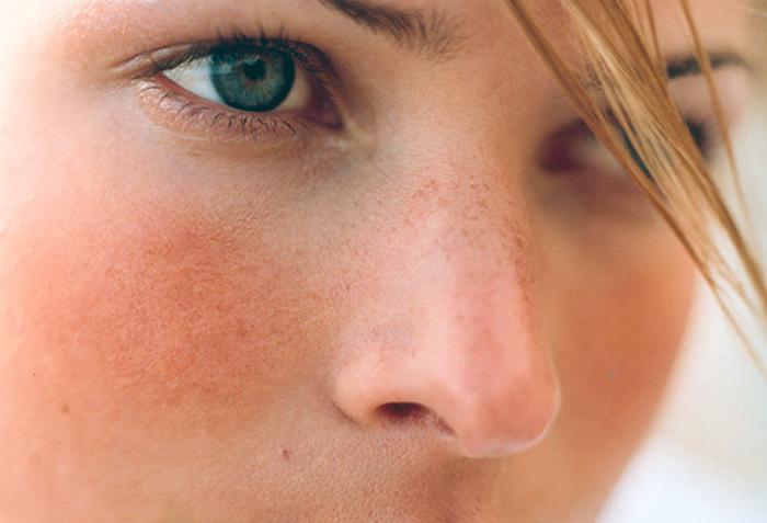 гиперемия лица