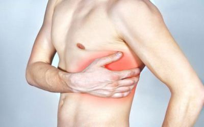 Межреберная невралгия: симптомы, клиническая картина