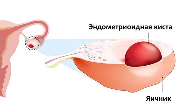 Эндометриоидная киста может быть случайно обнаружена при проведении УЗИ