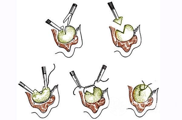 Клиновидная резекция яичника (этапы операции)