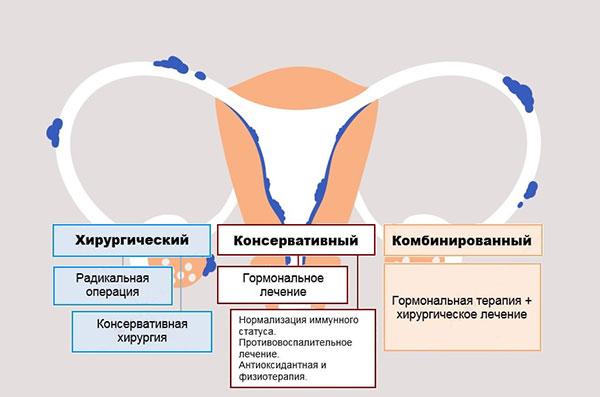 Основные методы лечения эндометриоза