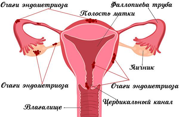 Генитальный эндометриоз (варианты локализации очагов)