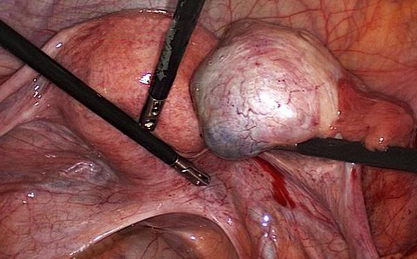 Удаление кисты яичника лапароскопически