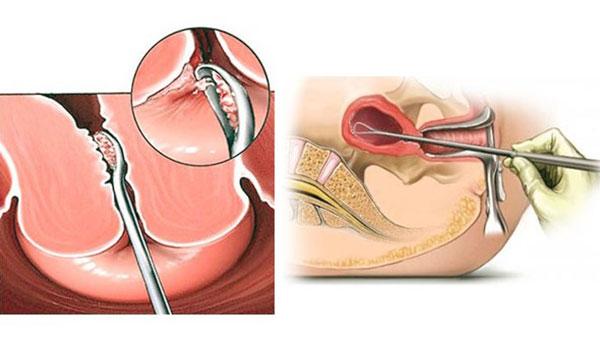 Раздельное лечебно-диагностическое выскабливание при маточных кровотечениях