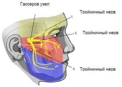 Синдром Чарлина (невралгия носоресничного нерва): что это такое?