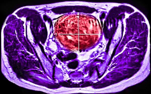 Миома на МРТ