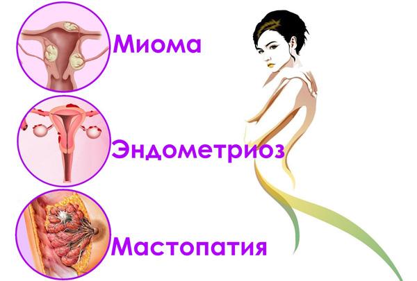 Сопутствующие миоме заболевания