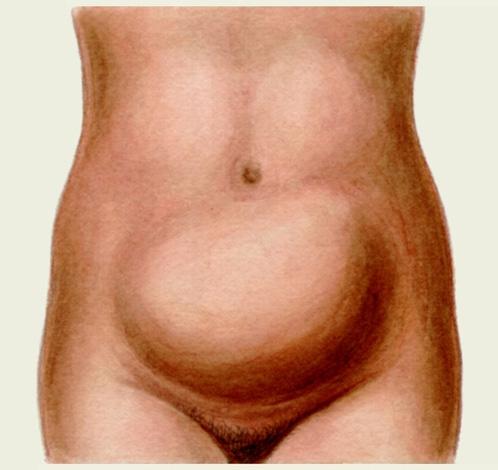 Увеличение живота как признак наличия миомы большого размера