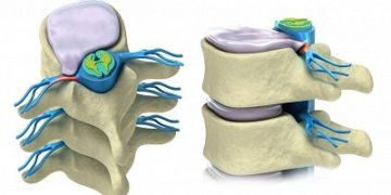 Что такое дорсальные протрузии межпозвоночных дисков