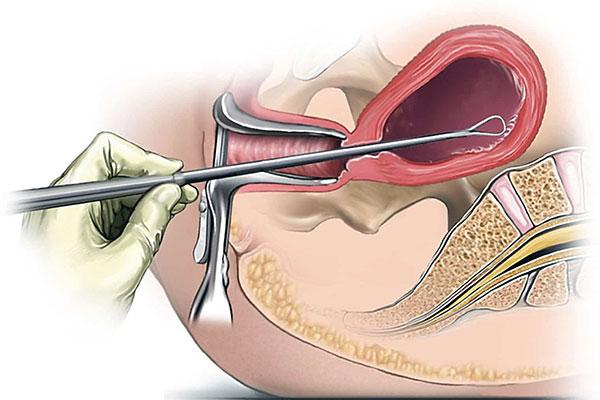 Выскабливание полости матки как причина аденомиоза