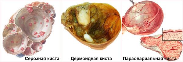 Нефункциональные кисты яичника