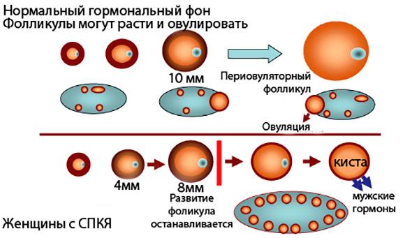 Сравнение нормального менструального цикла и цикла с формированием кистозного образования