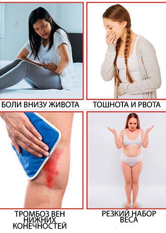 Симптомы гиперстимуляции яичников