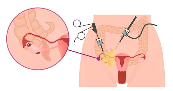 Рассмотрим, для чего нужна лапароскопия при СПКЯ и как проводится данная операция...