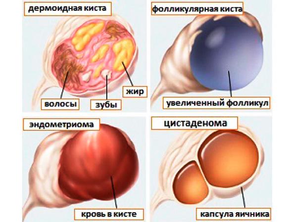 Основные виды кист яичника